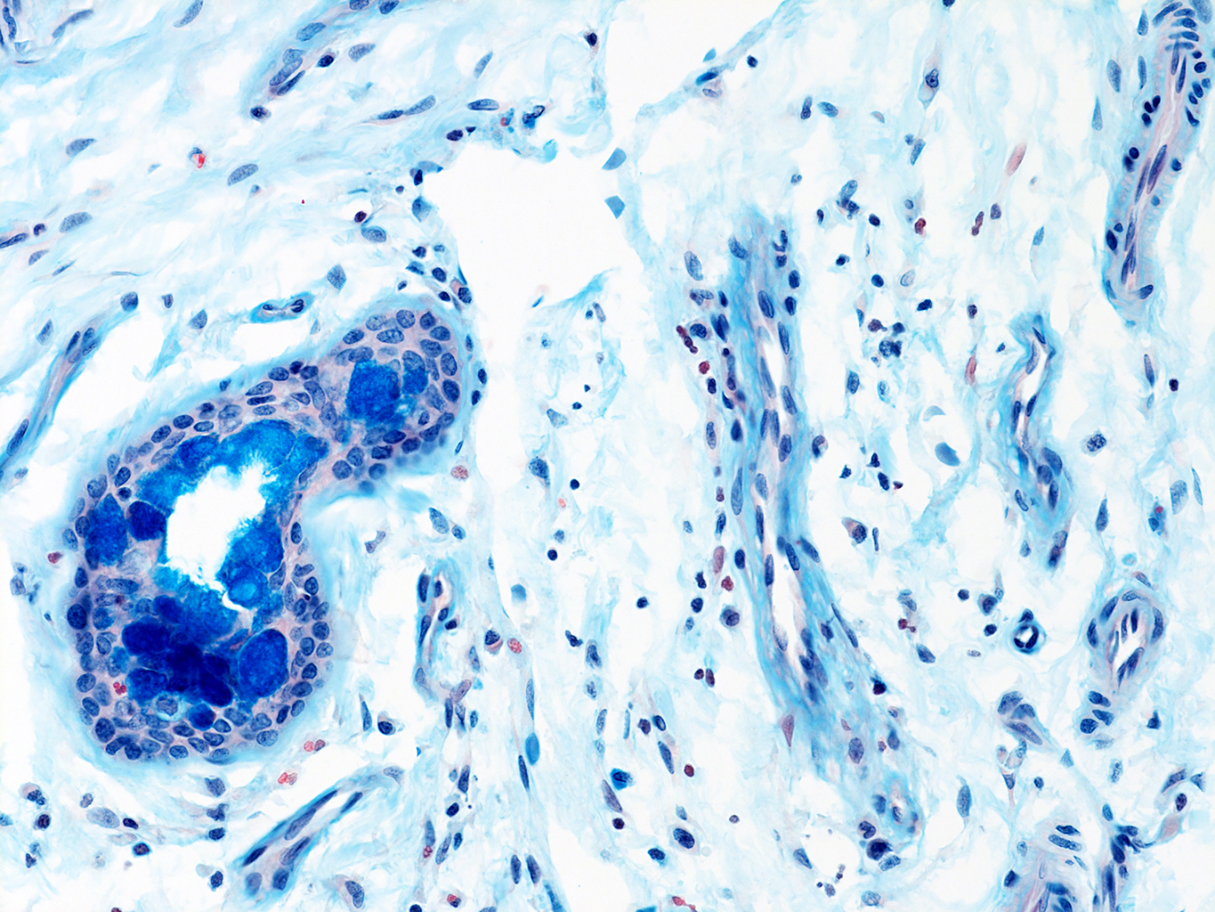 AB Staining of 14 Month-Old Human Lung from Donor D072-LLL-13B4