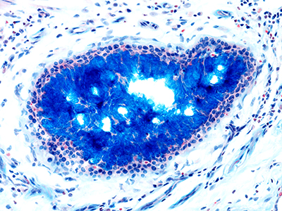 Alcian Blue Staining of 14 Month-Old Human Lung from Donor D072-LLL-13B4