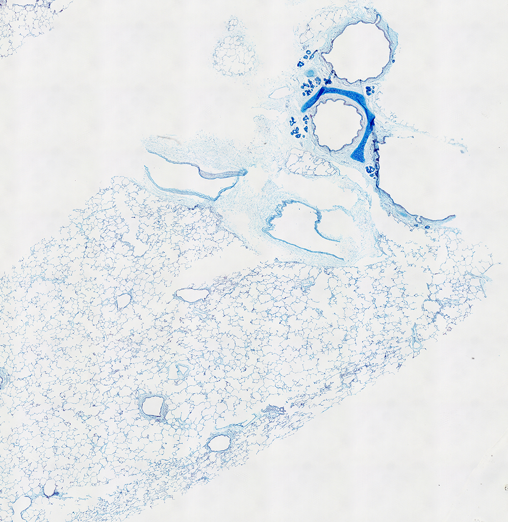 AB Staining of 14 Month-Old Human Lung from Donor D072-RLL-15B3