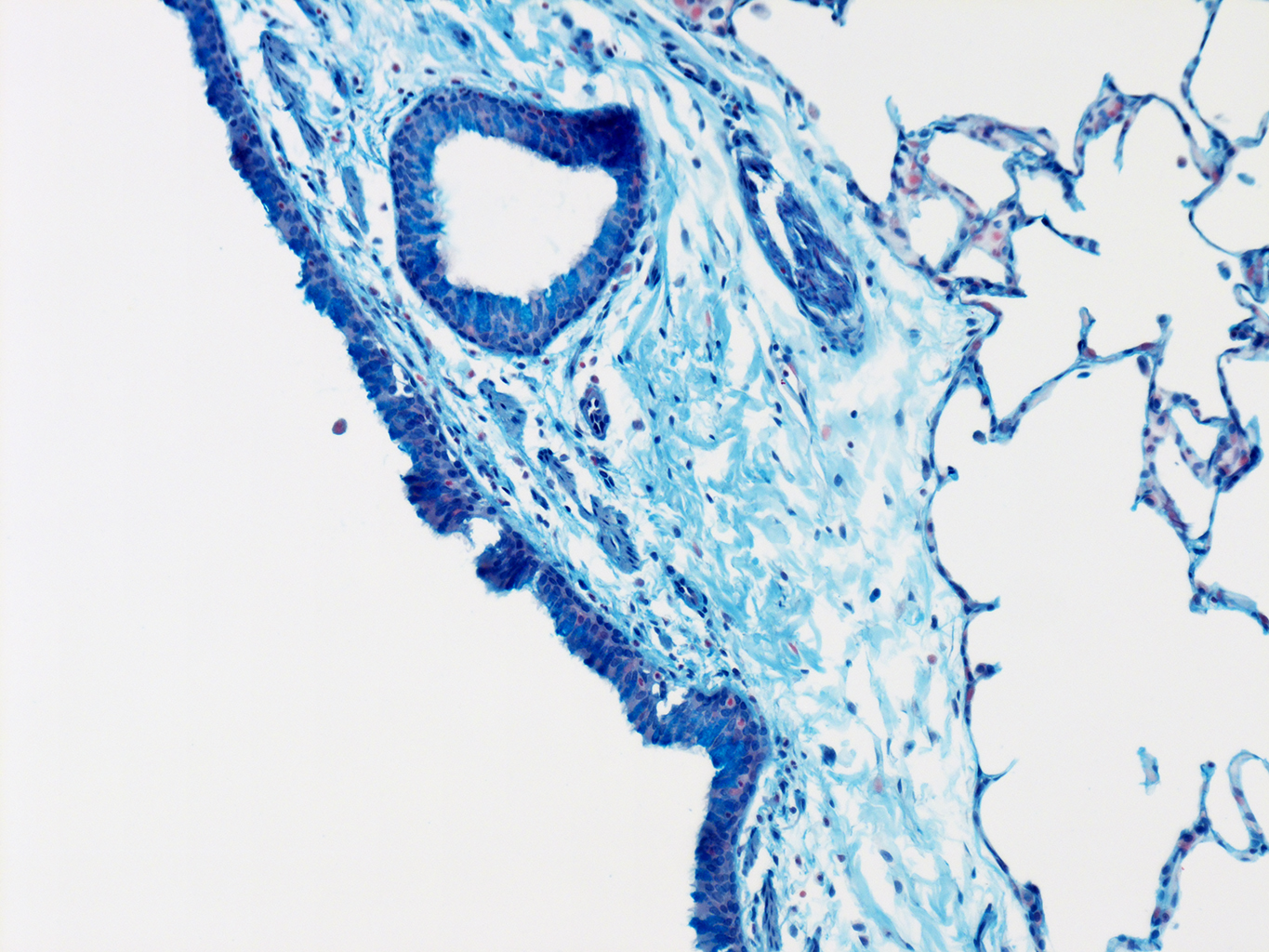 AB Staining of 14 Month-Old Human Lung from Donor D072-RLL-14B2