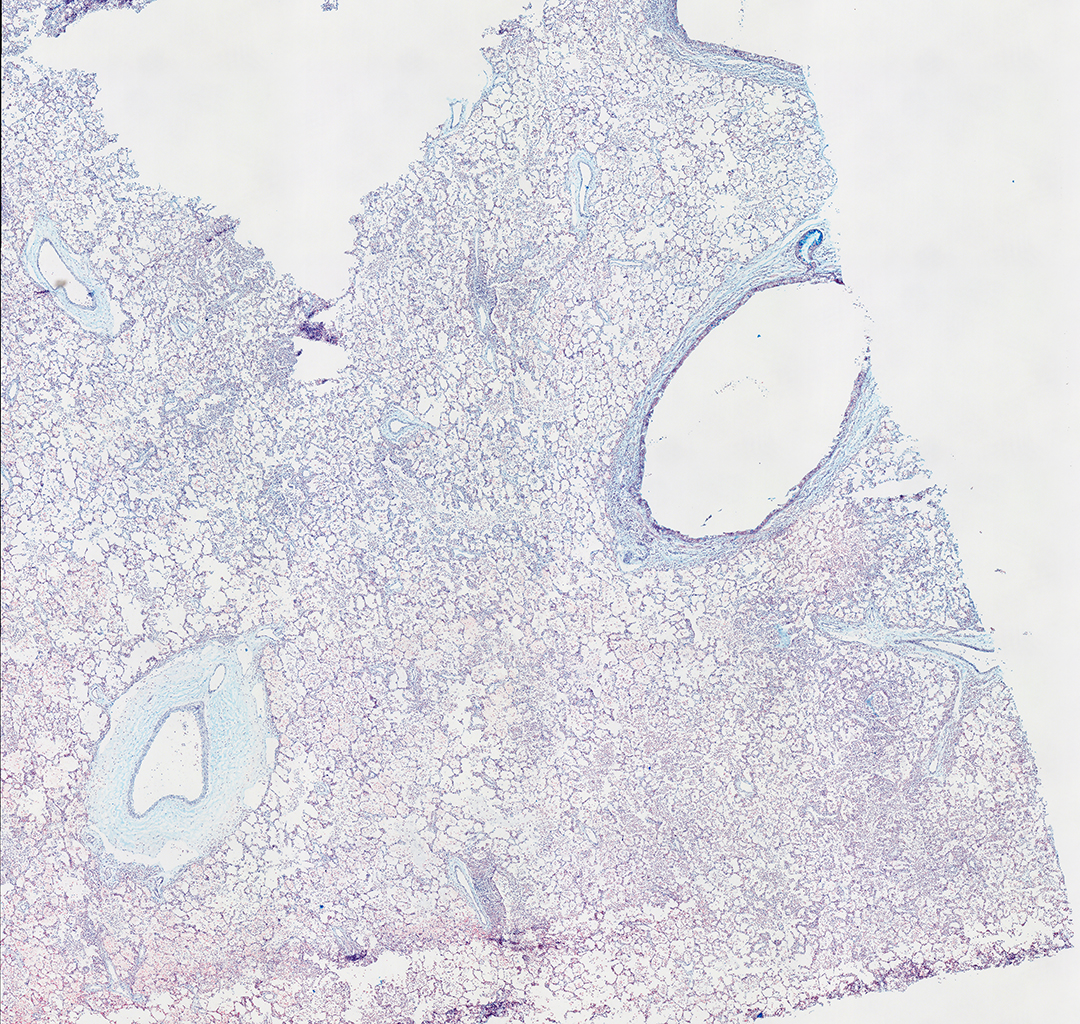 AB Staining of 11 Month-Old Human Lung from Donor D094-LLL-5A3