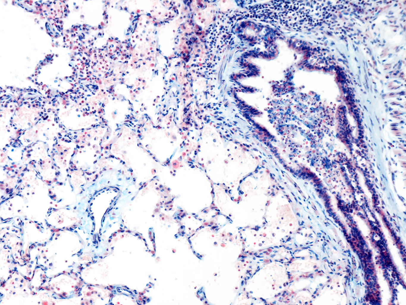 AB Staining of 11 Month-Old Human Lung from Donor D094-LLL-6A3