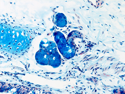 Alcian Blue Staining of 4 Month-Old Human Lung from Donor D075-LLL-6A3