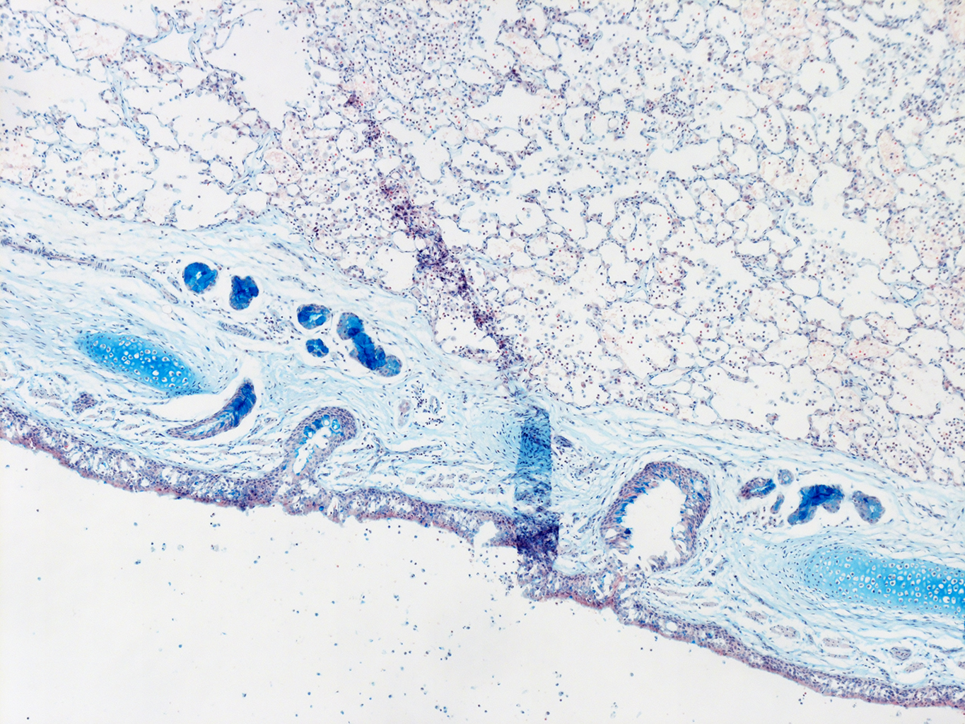 AB Staining of 11 Month-Old Human Lung from Donor D094-LLL-4B3