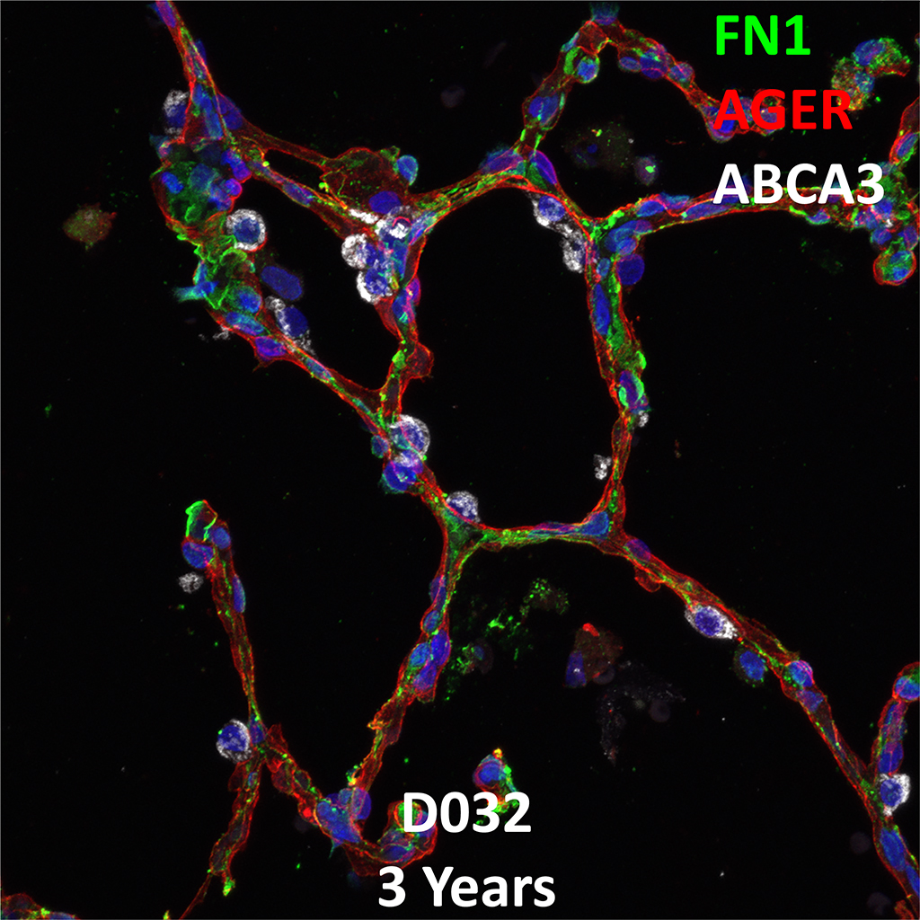 3 Year-Old Human Lung Immunofluorescence and Confocal Imaging Donor D032 Showing Expression of FN1, AGER, and ABCA3