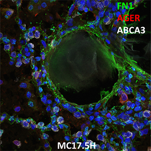 Human Lung Confocal Imaging MC17.5H.B1 showing expressions of FN1, AGER and ABCA3