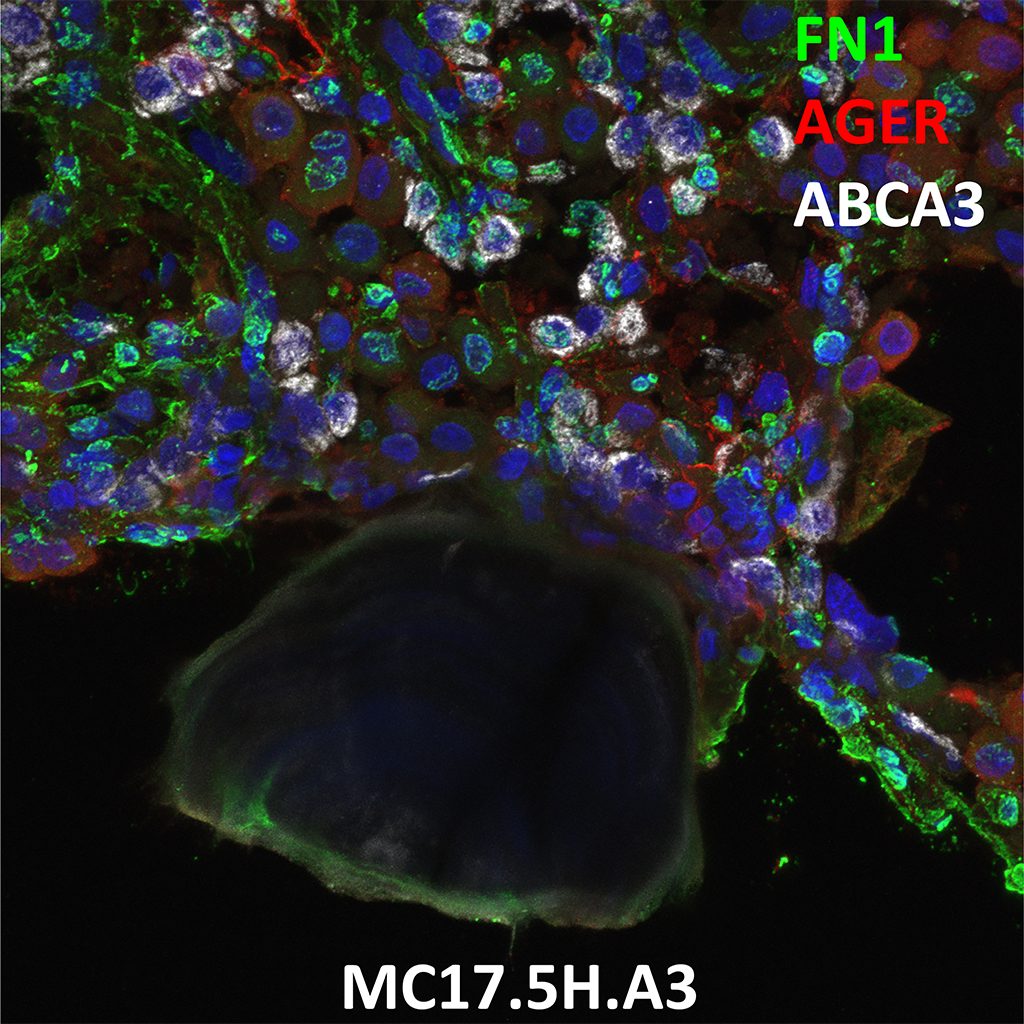Human Lung Confocal Imaging MC17.5H.A3 showing expressions of FN1, AGER and ABCA3