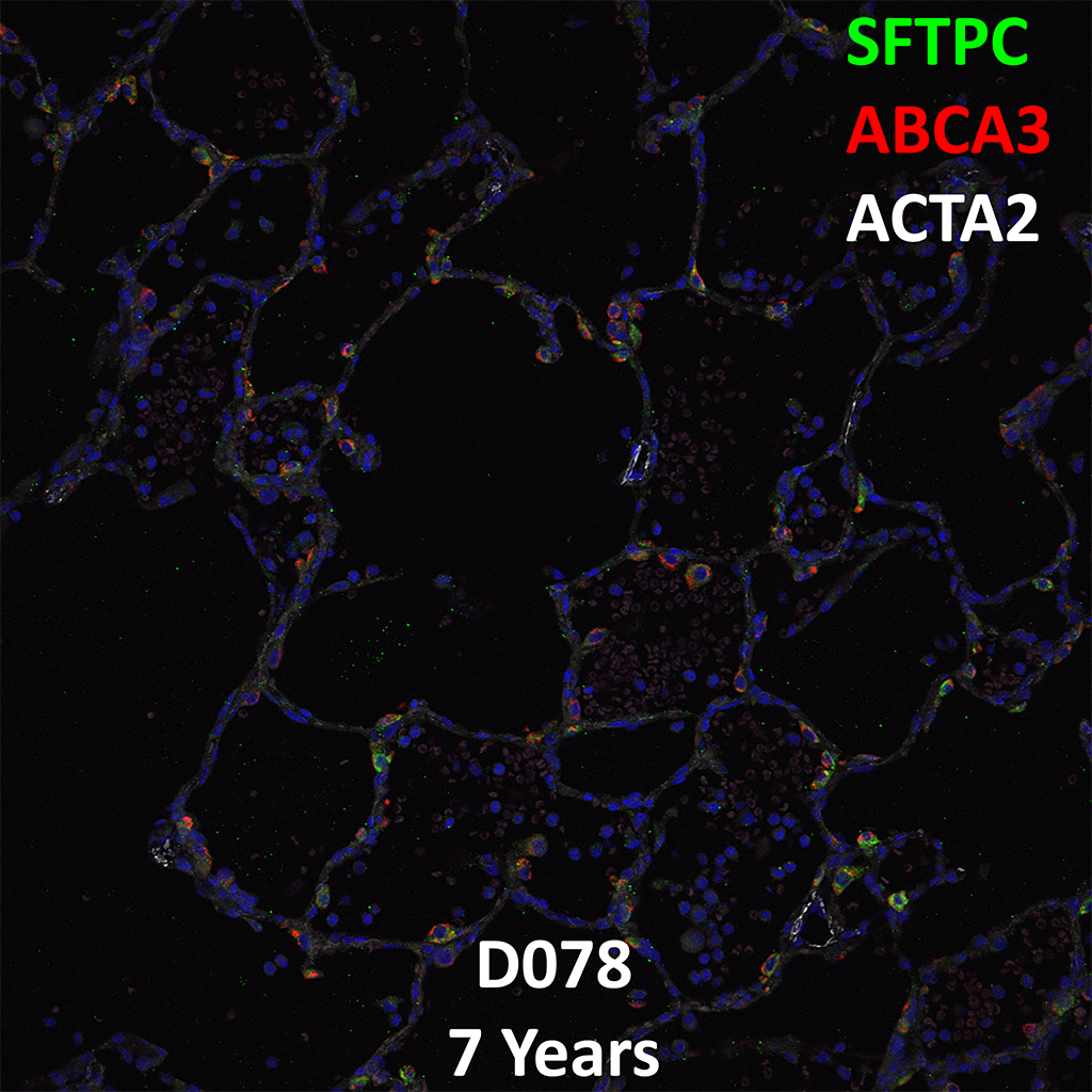 7 Year-Old Human Lung with Asthma Immunofluorescence and Confocal Imaging Donor D078 Showing Expression of SFTPC, ABCA3, and ACTA2