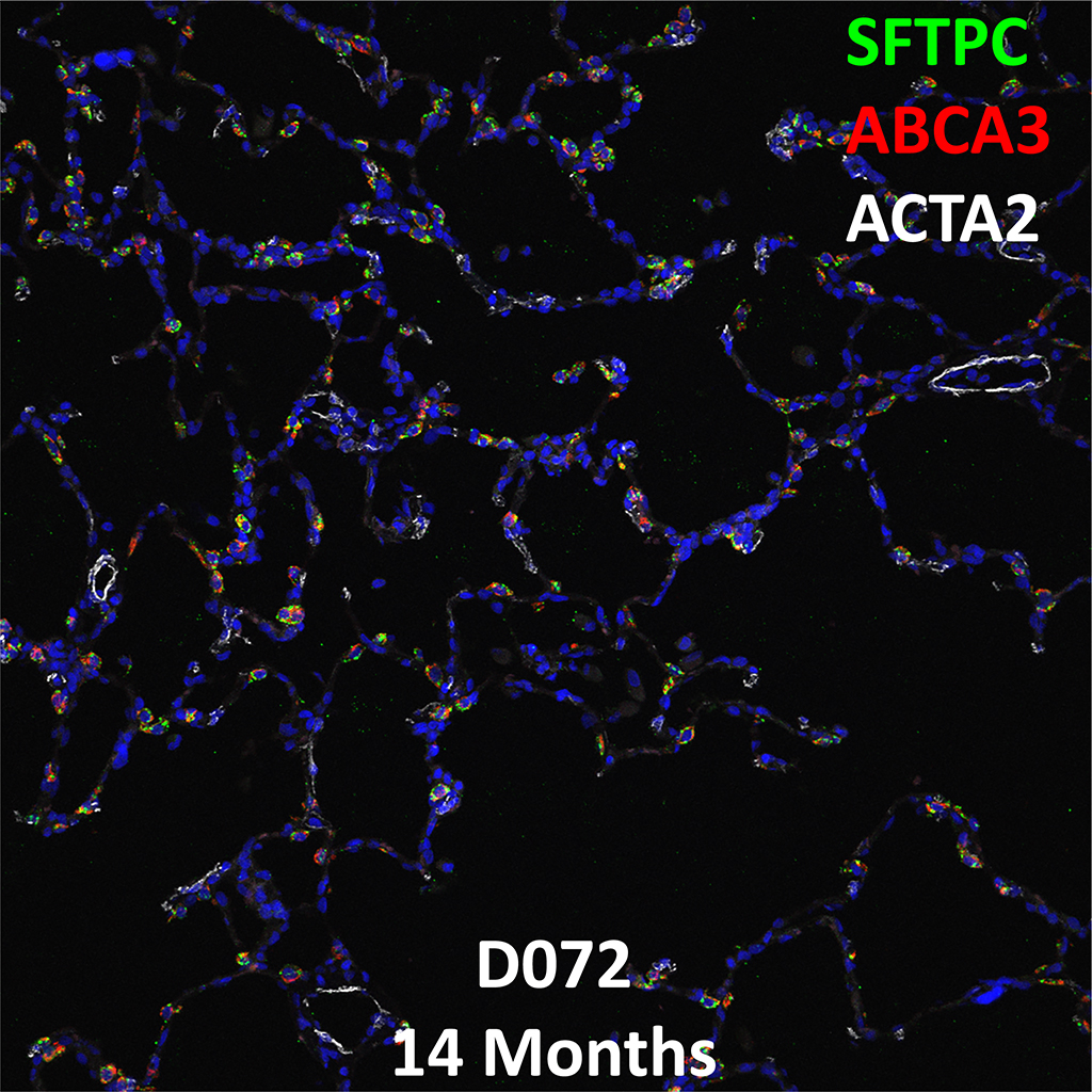 14 Month-Old Human Lung Immunofluorescence and Confocal Imaging Donor D072 Showing Expression of SFTPC, ABCA3, and ACTA2