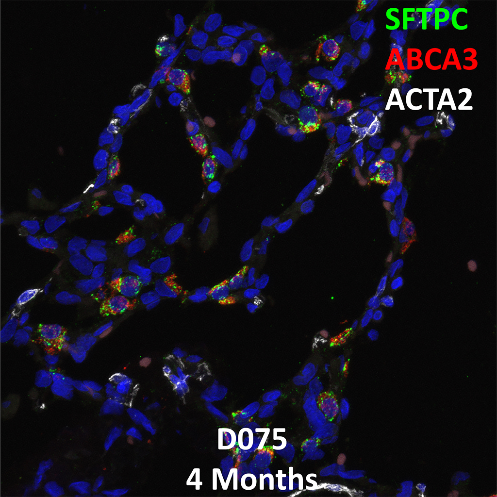 4 Month-Old Human Lung Immunofluorescence and Confocal Imaging Donor D075 Showing Expression of SFTPC, ABCA3, ACTA2