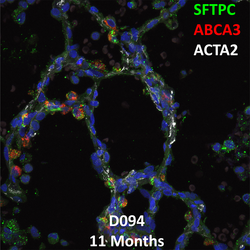 11 Month-Old Human Lung Immunofluorescence and Confocal Imaging Donor D094 Showing Expression of SFTPC, ABCA3, and ACTA2