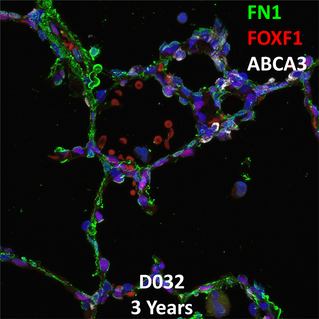 3 Year-Old Human Lung Immunofluorescence and Confocal Imaging Donor D032 Showing Expression of FN1, FOXF1, and ABCA3