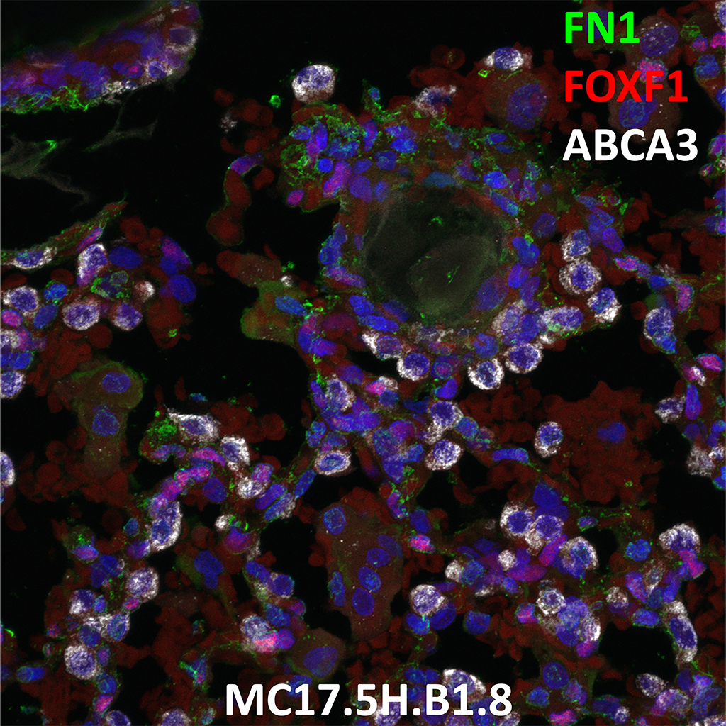 Human Lung Confocal Imaging MC17.5H.B1.8 showing expressions of FN1, FOXF1 and ABCA3