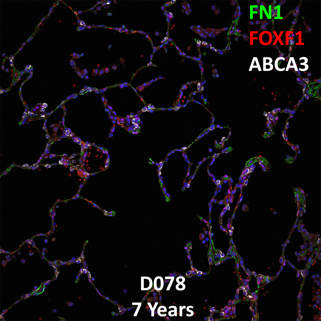 7 Year-Old Human Lung with Asthma Immunofluorescence and Confocal Imaging Donor D078 Showing Expression of FN1, FOXF1, and ABCA3