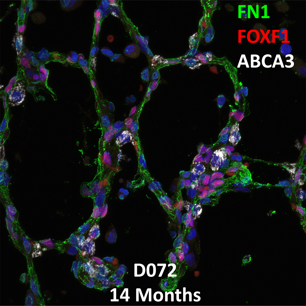 14 Month-Old Human Lung Immunofluorescence and Confocal Imaging Donor D072 Showing Expression of FN1, FOXF1, and ABCA3