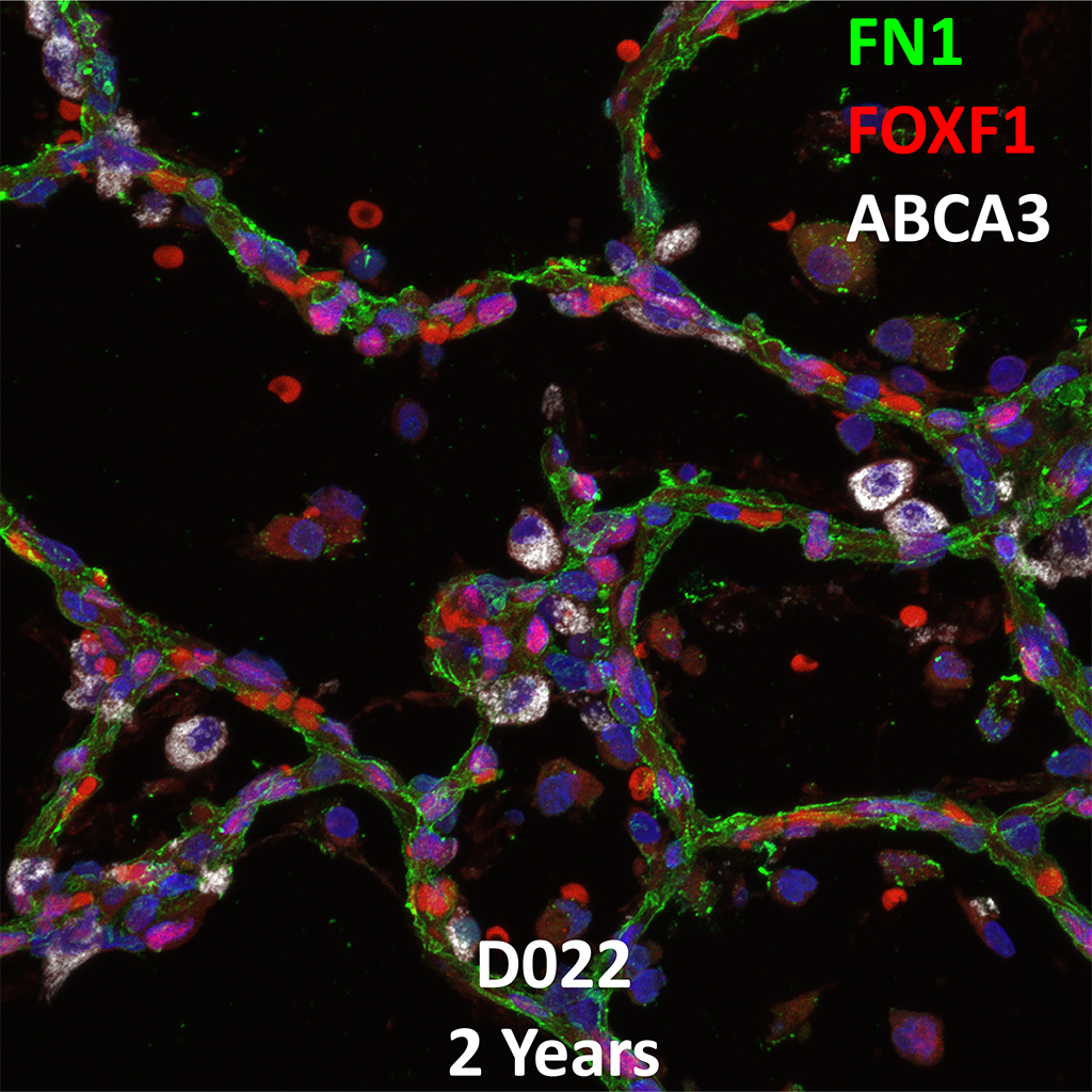 2 Year-Old Human Lung Immunofluorescence and Confocal Imaging Donor D022 Showing Expression of FN1, FOXF1, and ABCA3