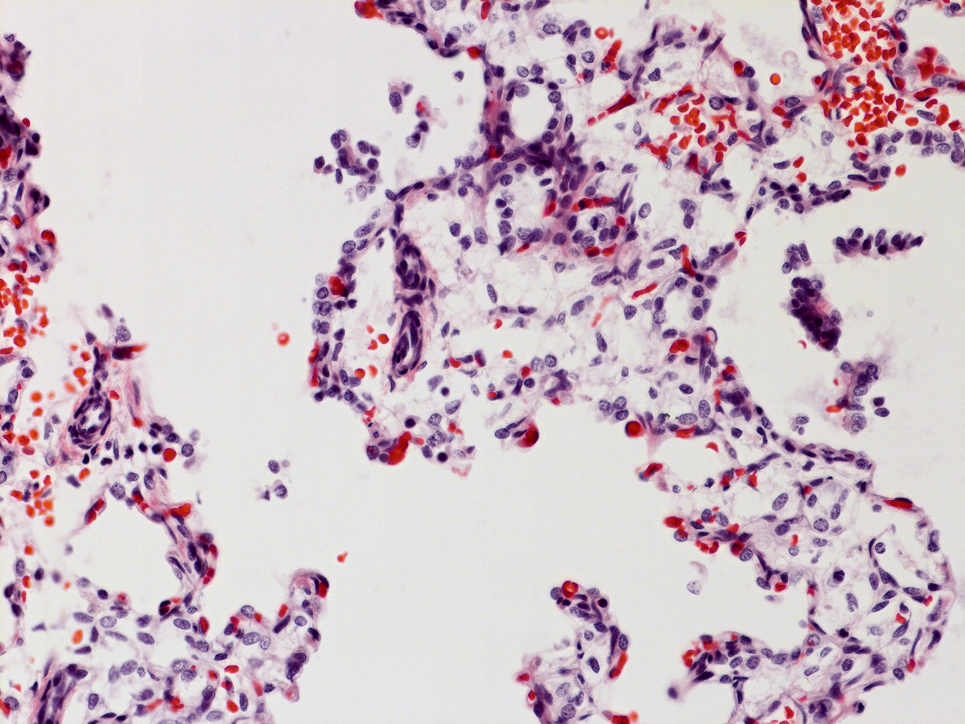 H&E Staining of 1 Day-Old Human Donor D150-3A2.26