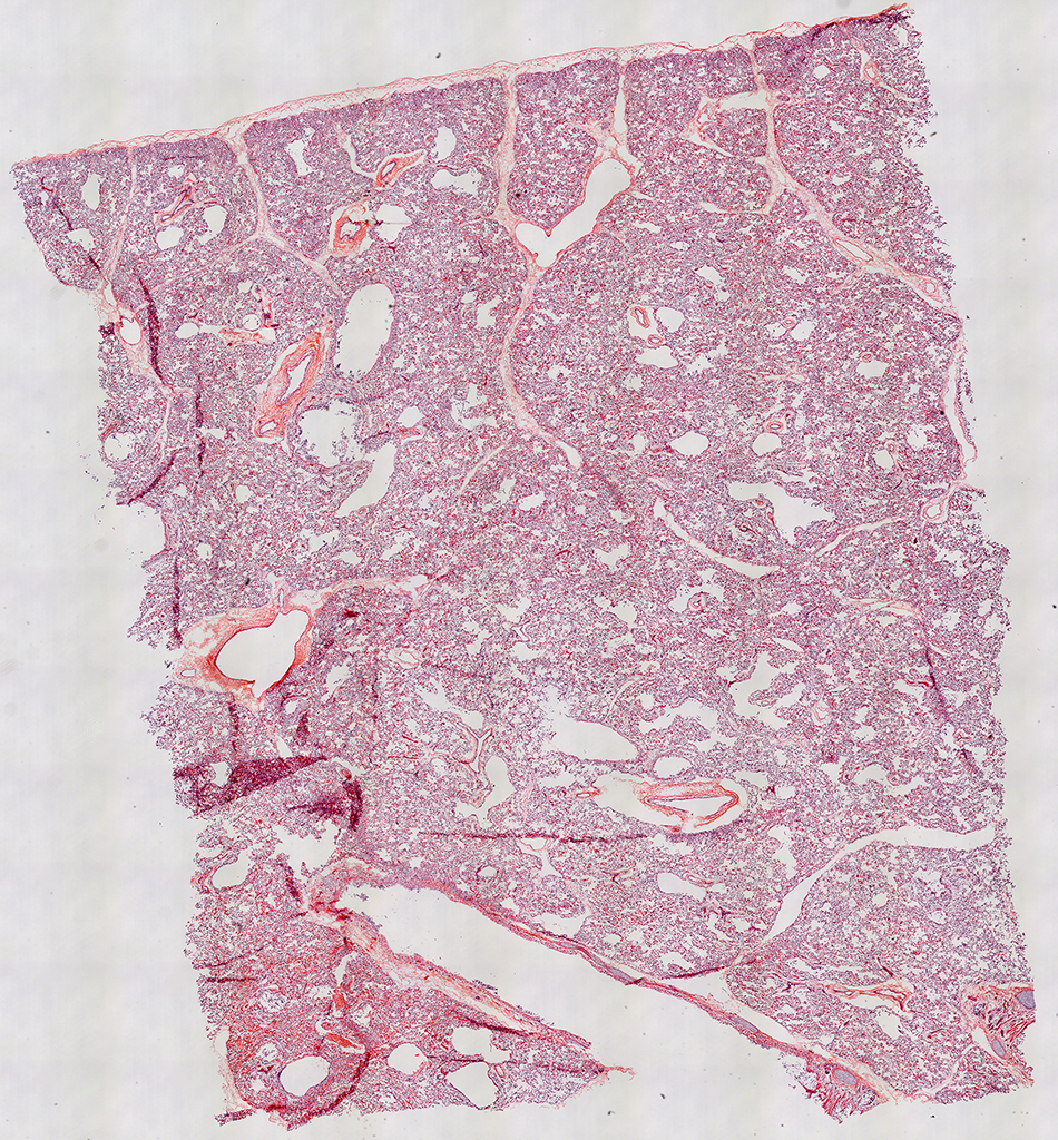 H&E Staining of 41 Day-Old Human Donor D207-3A3.17