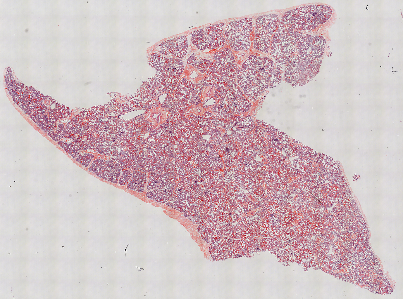H&E Staining of 1 Day-Old Human Donor D150-5A1.16