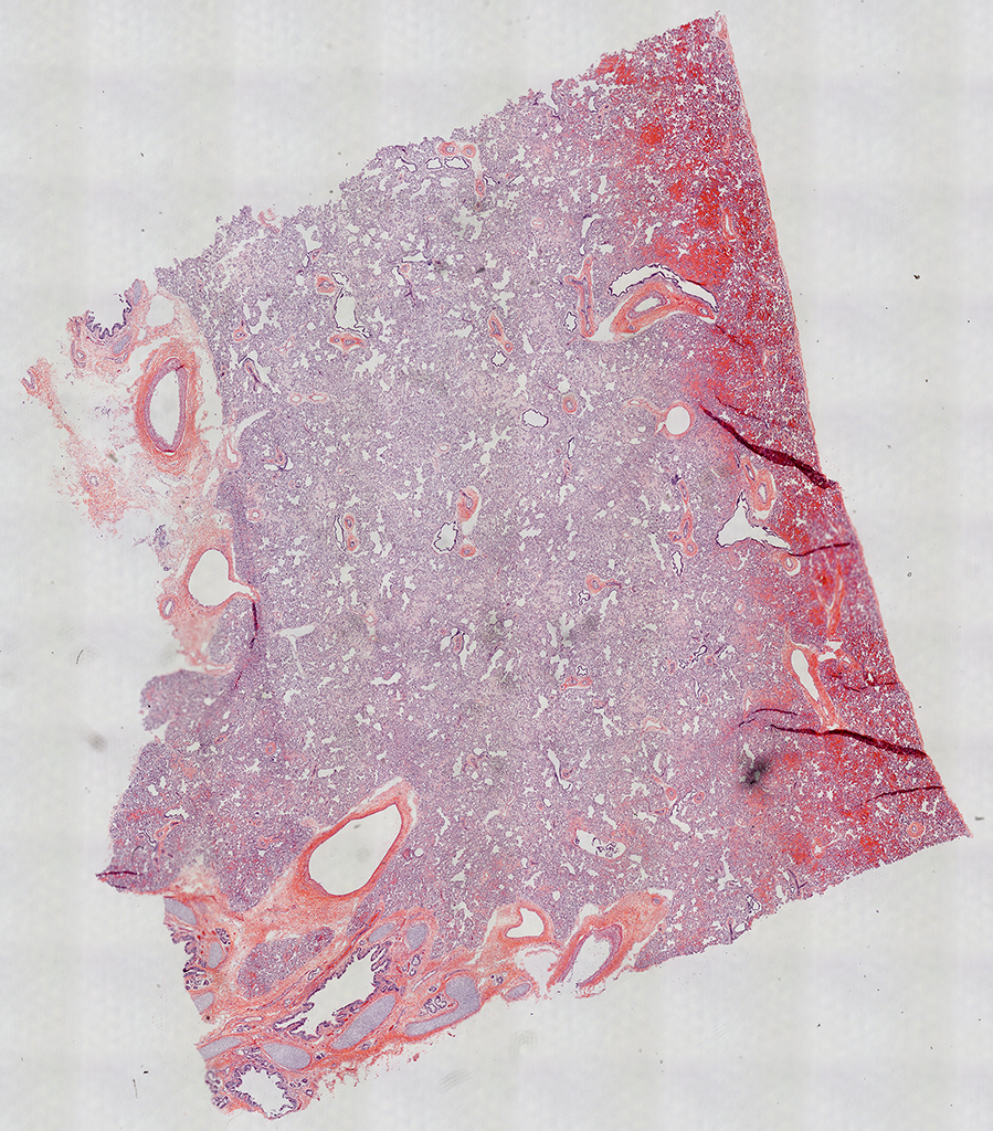 H&E Staining of 1 Day-Old Human Donor D127-5A2.14