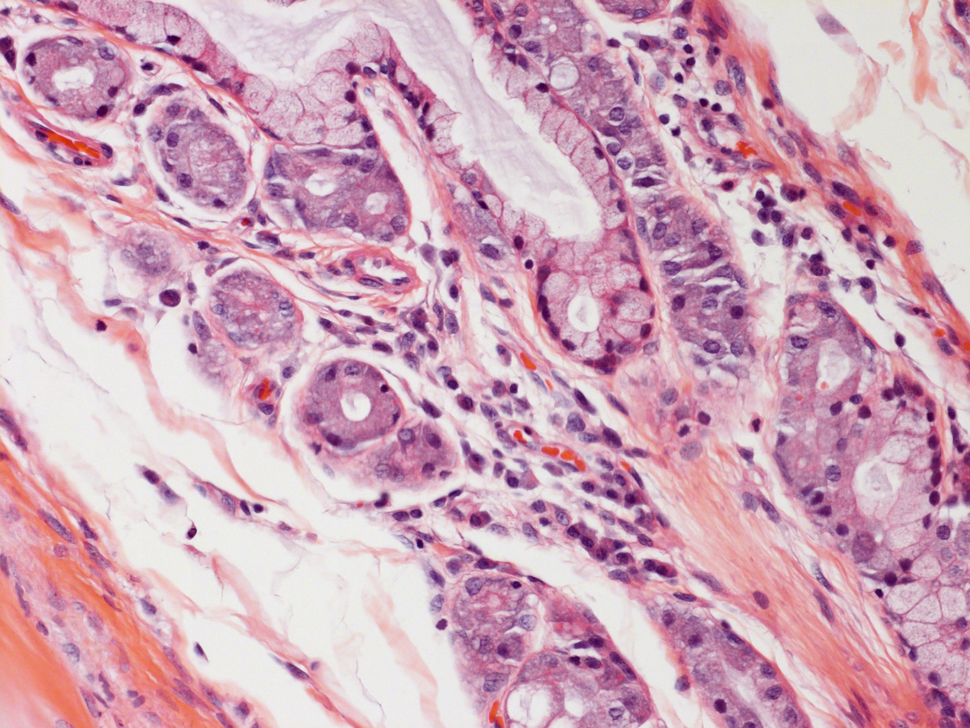 H&E Staining of 24 Year-Old Human Donor D071-23C2.20