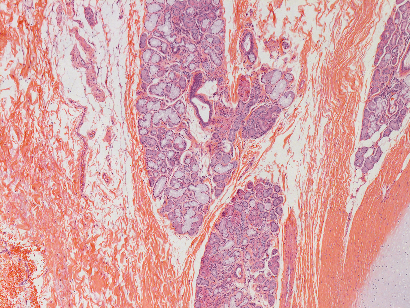 H&E Staining of 29 Year-Old Human Donor D175-10C2.13