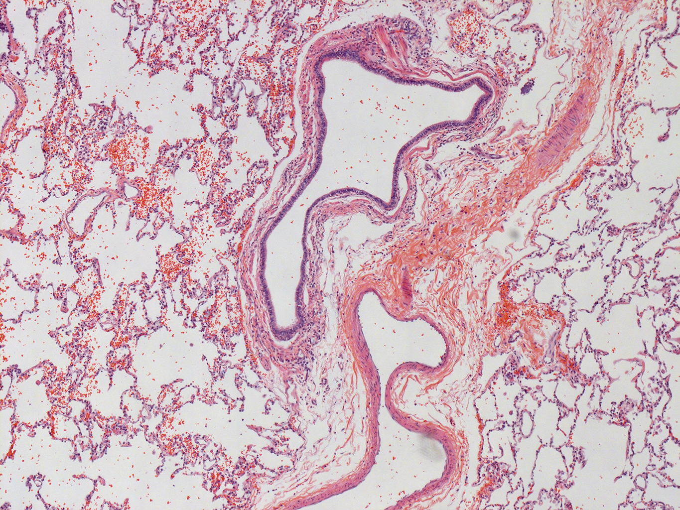 H&E Staining of 29 Year-Old Human Donor D175-10D2.17