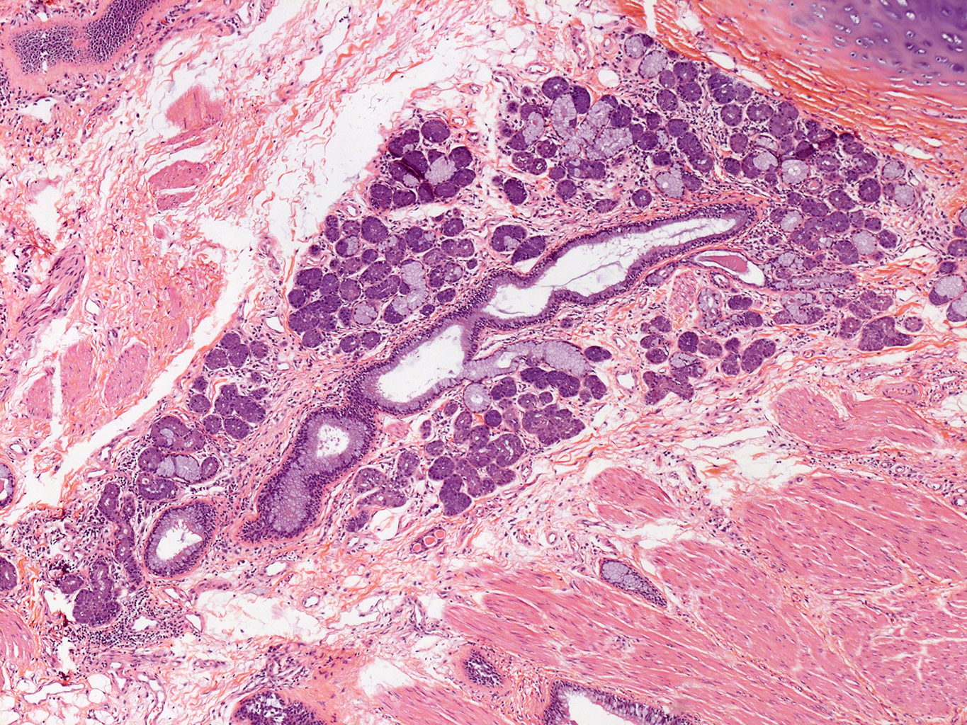 H&E Staining of 31 Year-Old Human Donor 10