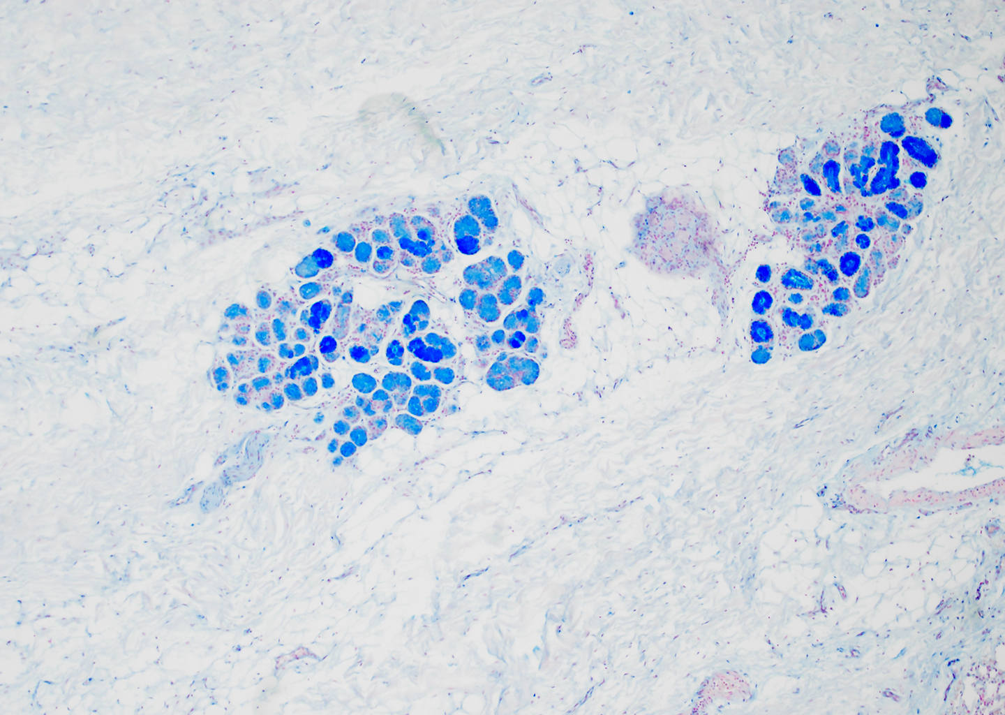 Alcian Blue Staining of 29 Year-Old Human Donor D175-10C3.21
