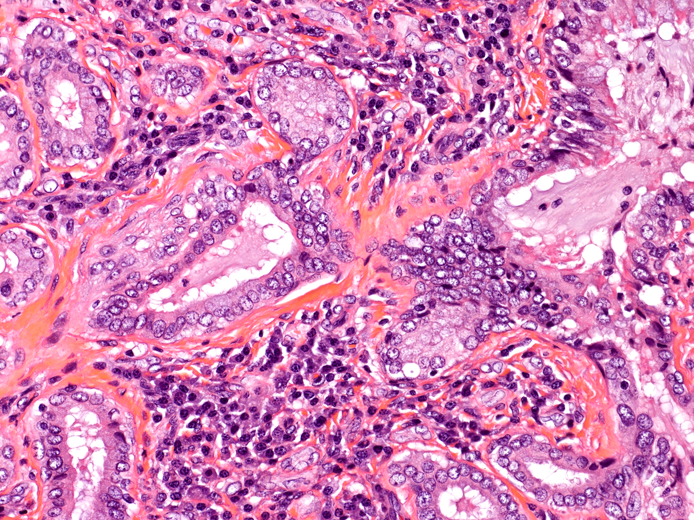 H&E Staining from PBR 3383 Patient with Cystic Fibrosis