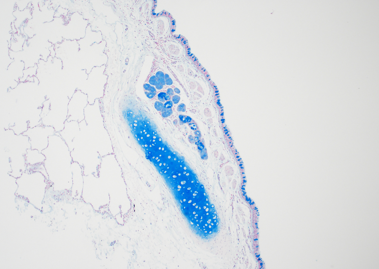 Alcian Blue Staining of 24 Year-Old Human Donor D071-17C2.20