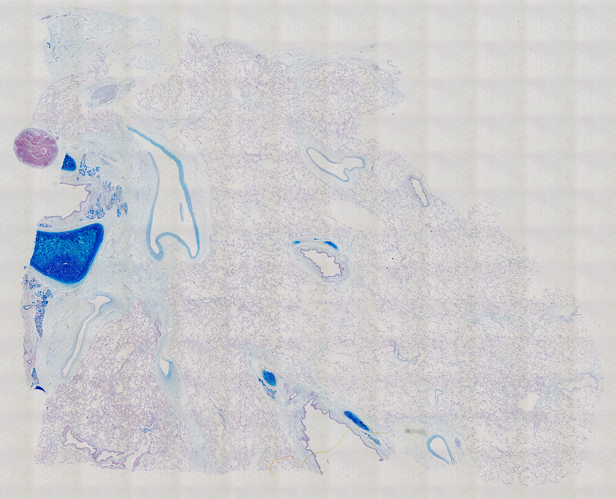 Alcian Blue Staining of 29 Year-Old Human Donor D175-10C1.21