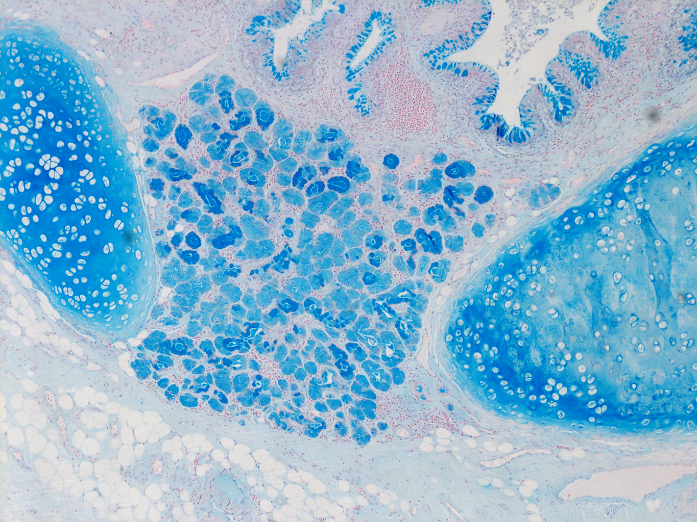 Alcian Blue Staining from PBR 3383 Patient with Cystic Fibrosis
