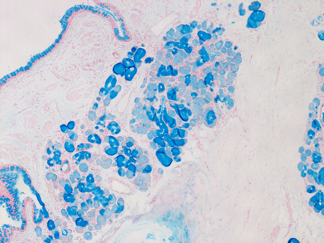 Alcian Blue Staining of 27 Year-Old Human Donor 3